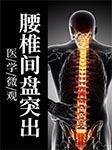 医学微观:腰椎间盘突出-佚名-无名氏